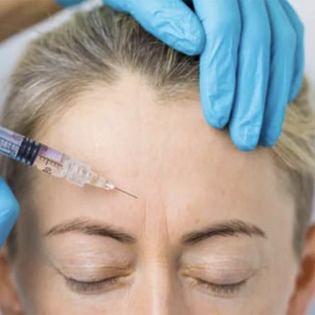 Botox for the first time? What to expect.