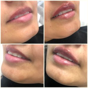 Lip Filler 0.5ml